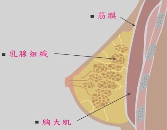 台中隆乳|台中隆乳手術11