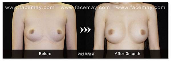 內視鏡隆乳-1.jpg