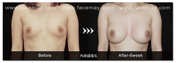 隆乳案例4.jpg