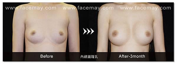 隆乳案例3.jpg