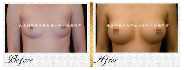 隆乳案例1