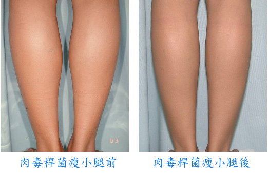 台中|菲仕美診所|肉毒桿菌瘦小腿(除蘿蔔腿)