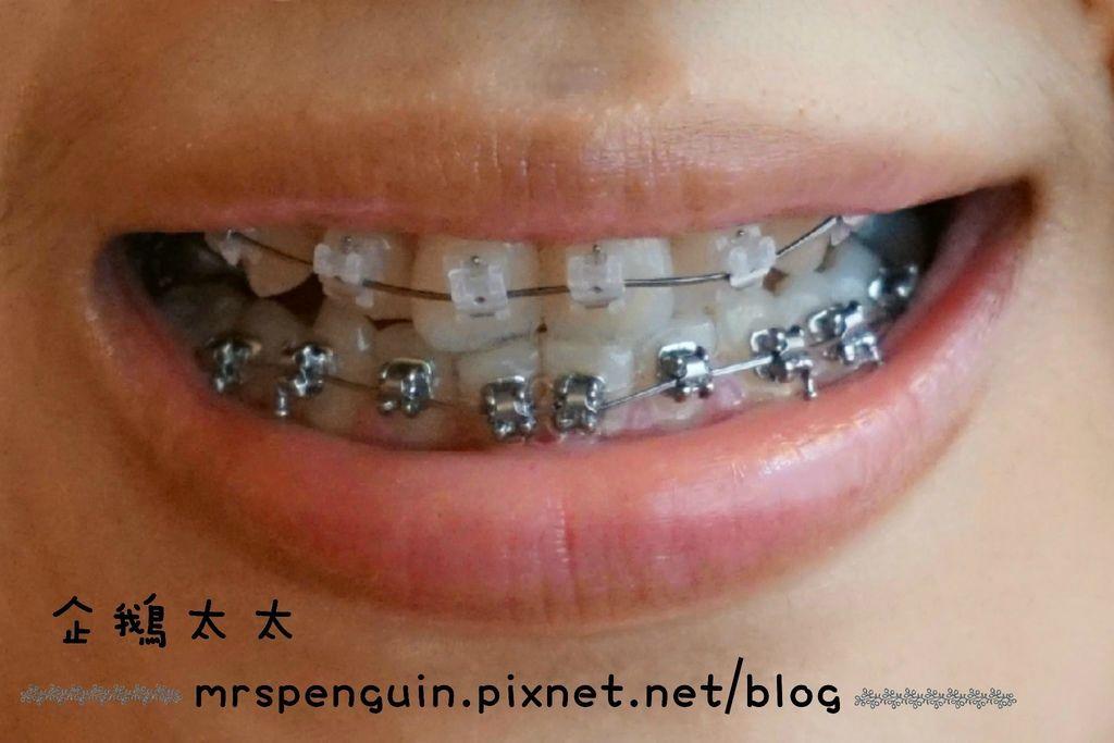 102015.04.30 牙齒 024-1.jpg