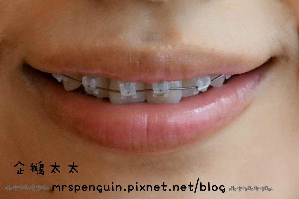 102015.04.30 牙齒 025-1.jpg