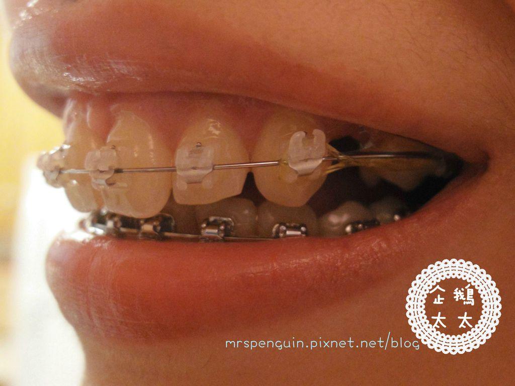 02015.09.11 牙齒 001.jpg