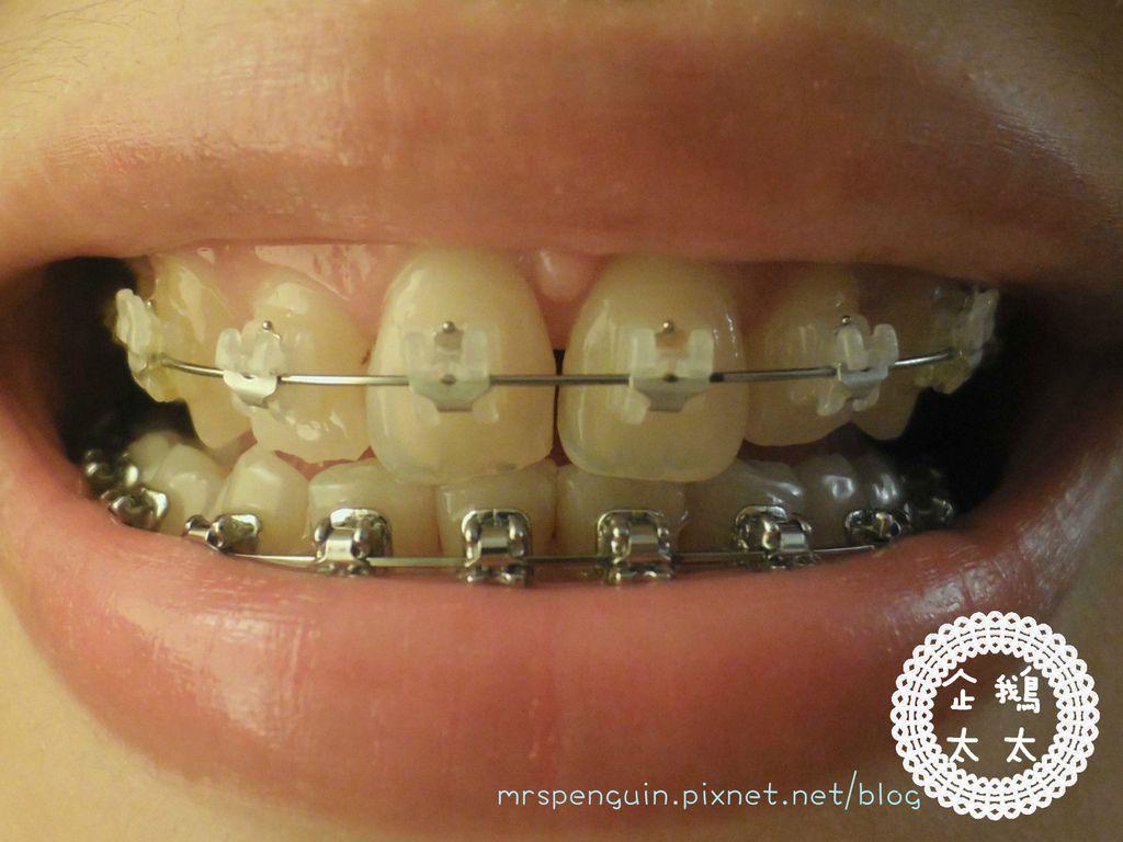 02015.09.11 牙齒 003.jpg