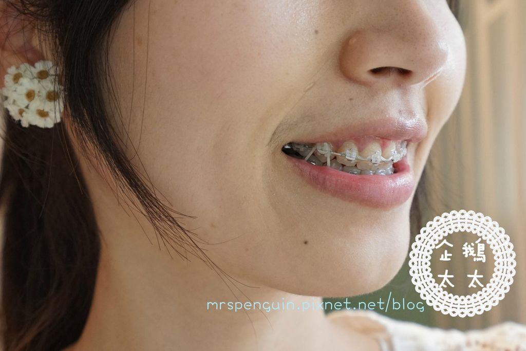 2017.04.05 牙齒 003-1.jpg