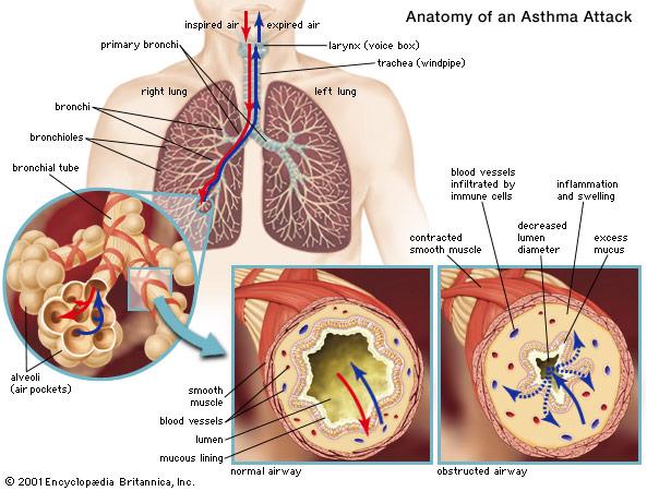 asthma_attack.jpg