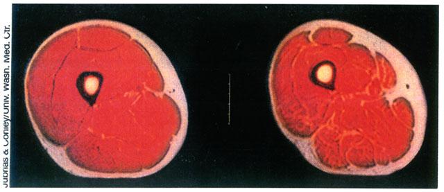 sarcopenia.jpg