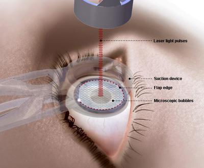 lasek-eye-surgery.jpg