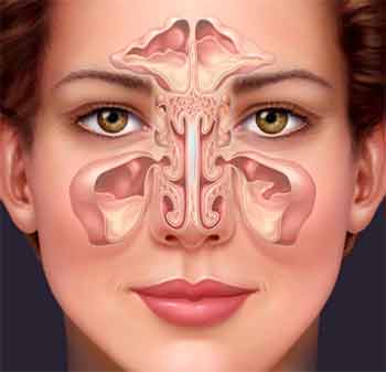 symptoms-of-sinusitis