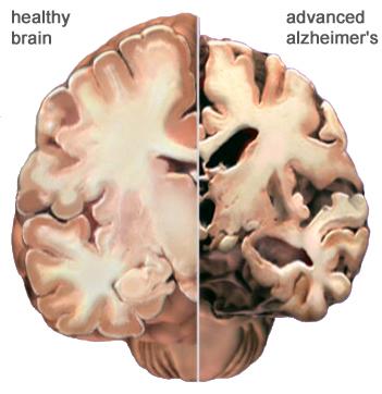 alzheimer_brain