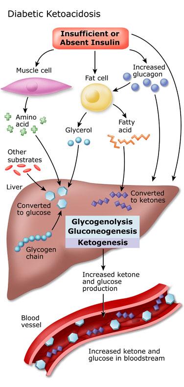「酮酸中毒」的圖片搜尋結果