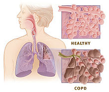 220px-Copd_versus_healthy_lung
