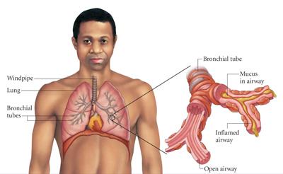 bronchitis_3.3