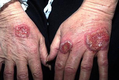 Neutrophilic_dermatosis_han