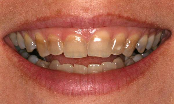 Tetracycline-tooth-stains
