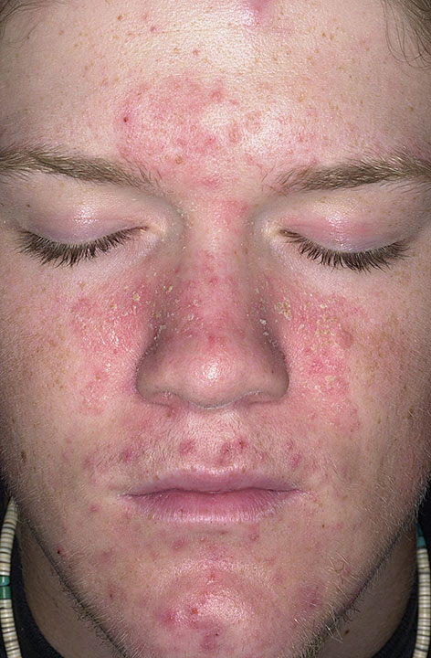 seborrheic_dermatitis_119