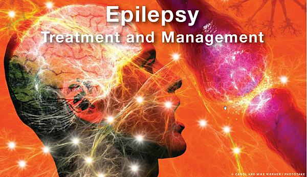 Epilepsy-001