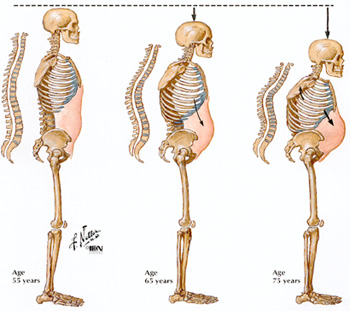 Skeletons-showing-effects-of-osteoporosis