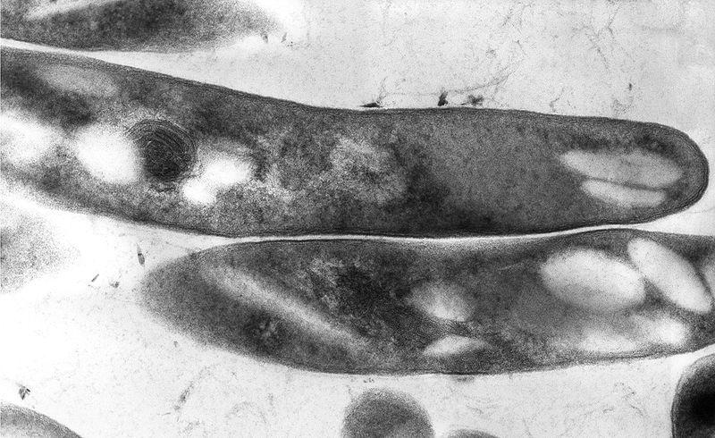 800px-Mycobacterium_tuberculosis_01