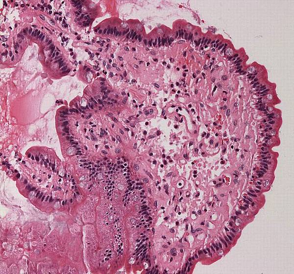 644px-Small_bowel_duodenum_with_amyloid_deposition_20X