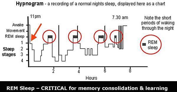 REM Sleep Stage.jpg