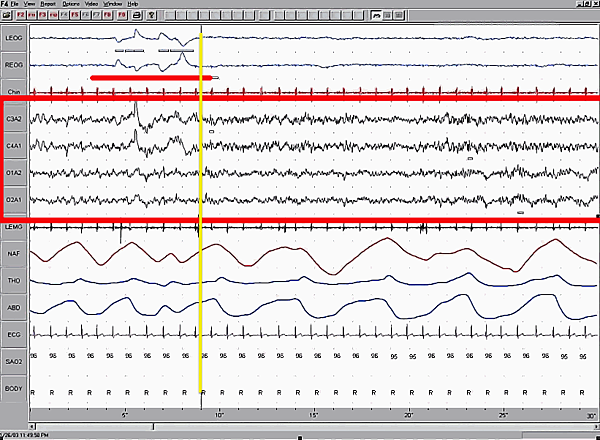 Sleep_EEG_REM.png