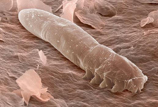 Eyelash-mites-under-a-microscope.jpg