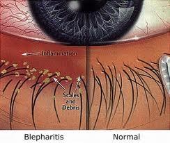 blepharitis pictoral.jpg