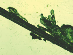 Two views of multiple mites coming from a collarette, and a single mite on the follicle1.jpg