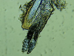 Two Demodex attached to the hair follicle root.jpg