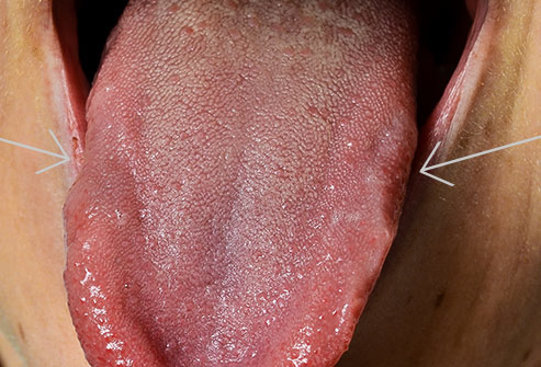 493ss_science_source_rm_scalloped_tongue.jpg