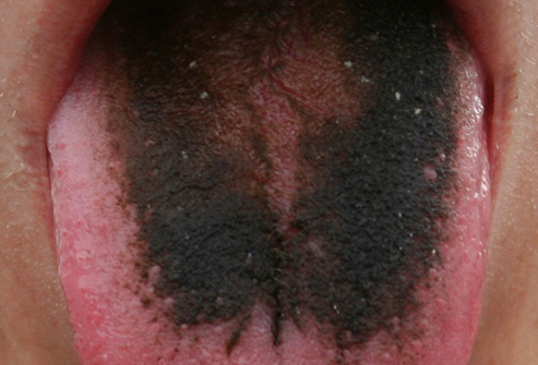 493ss_wikimedia_rf_black_hairy_tongue.jpg