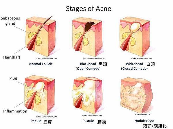 MarciaHartsock_acne-diagram.jpg