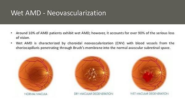 optimizing-image-guided-laserinduced-choroidal-neovascularization-in-mice-9-638