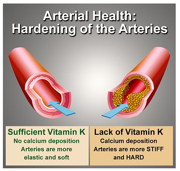 ArterialHealth-ArteriesGraphic-696x662.png