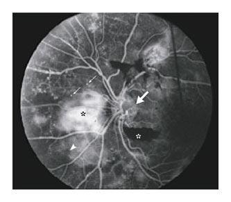 retinopathy1
