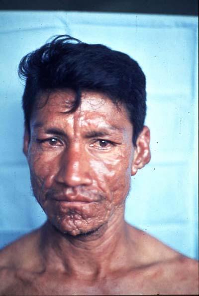 leprosy-who2.jpg