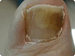 fungal-nail.png
