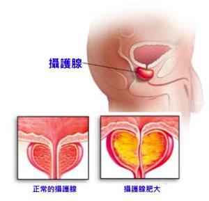 prostatitis-1.jpg