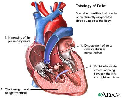 tetralogy-of-fallot.jpg