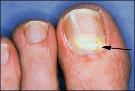 proximal-subungual-onychomycosis.jpg