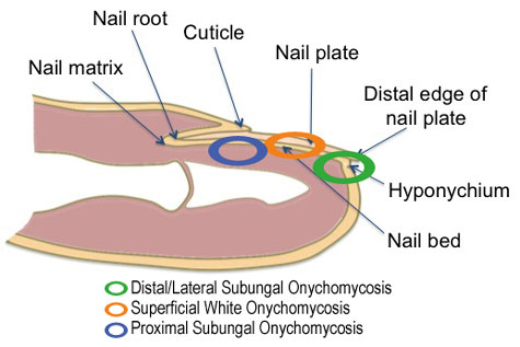 onychomycosis (1).jpg