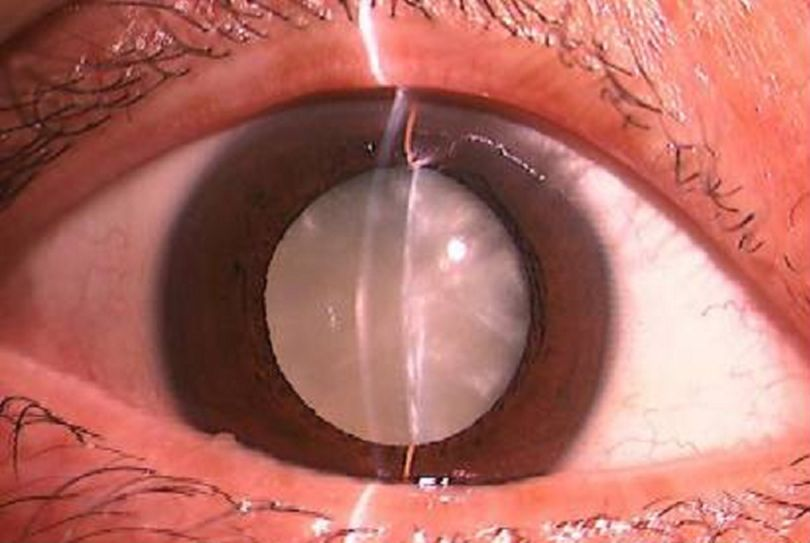 cataract.jpg