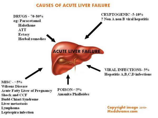 Acute-liver-failure.jpg
