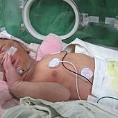 20141119-因「新生兒呼吸窘迫」而在加護病房觀察中