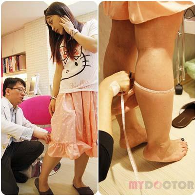名瑿醫美【窈窕美腿電波術】讓我大方秀小腿,窈窕美腿電波成功讓蘿蔔腿GET OUT7