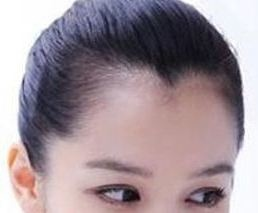 MyHair生髮植髮
