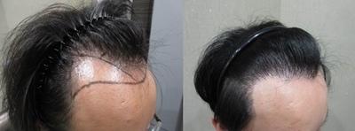 髮際線1-2.jpg.jpg